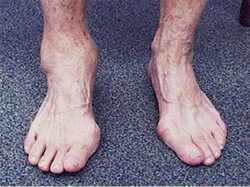 У ребенка артрит голеностопного сустава упражнения на растяжку тазобедренный сустав