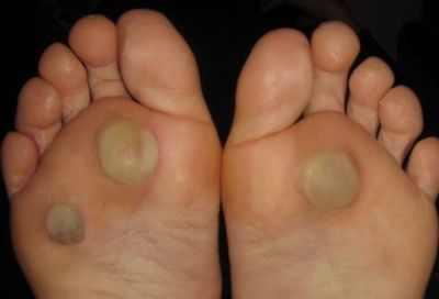 Значение родинки на ноге