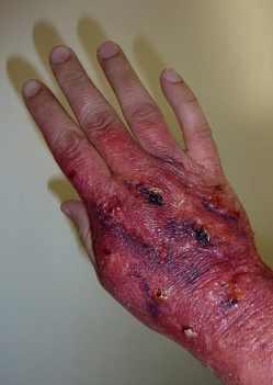 Лечение солью суставов большого пальца ноги