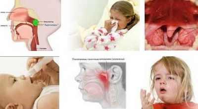 Аденоиды у детей лечение в домашних условиях