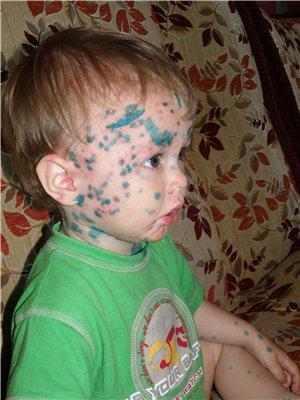 высыпания на коже ребенка герпес