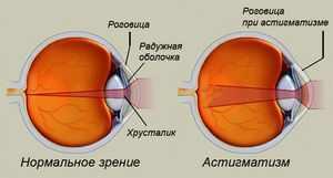 Линзы на дальнозоркость или близорукость