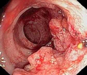 Рак желудка – причины, признаки, симптомы и лечение рака ...