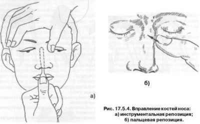Как вправлять нос в домашних условиях