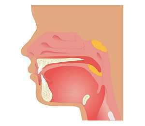 Остроконечные кондиломы фото во рту лечение