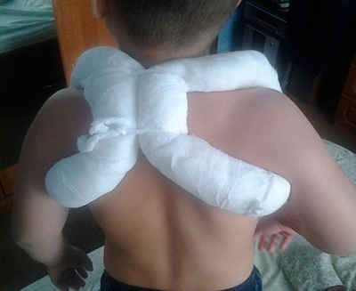 Перелом ключицы у детей со смещением Практика и отзывы Лечим ребенка