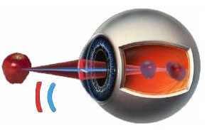 Сколько носят линзы для зрения