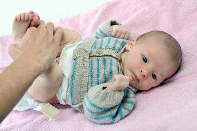 Радикулит у беременных лечение