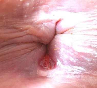 Лечение миомы народными средствами боровая матка