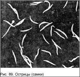 boli-pri-infektsii-mochevogo-puzirya