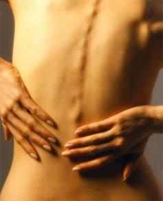 Позвоночная грыжа грудного отдела можно ли вылечить